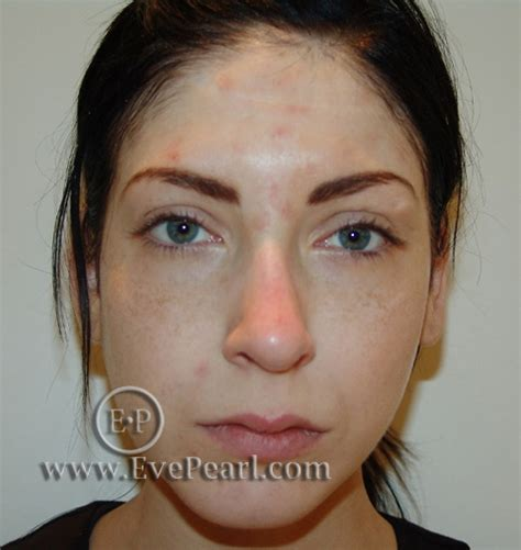 uneven skin color around the lips picture 4