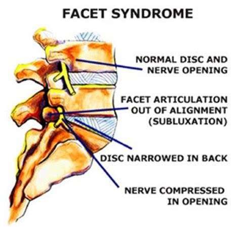 diagnosis of spinal facet joint laxity picture 5