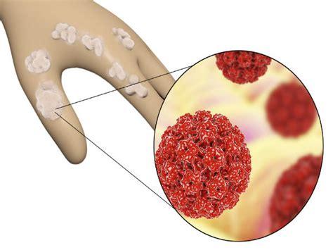 human papillomavirus is it curable picture 5
