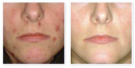 acne medicine picture 19