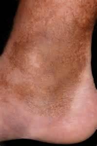 hemosiderin skin discoloration picture 1