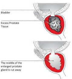 Prostate surgery pain picture 6
