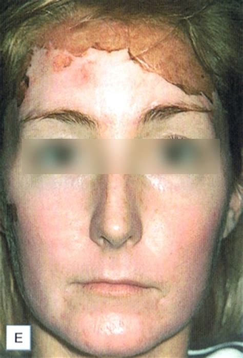 acne be gone picture 17