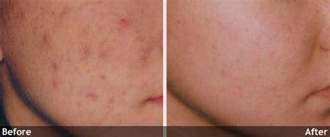 acne ke daag picture 2