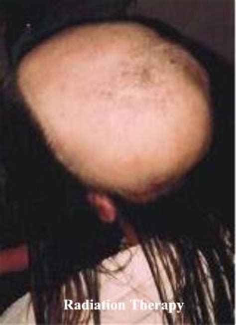 hair growth after radiation treatment picture 3