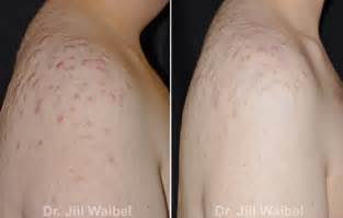 before and after of back acne scar removal picture 1