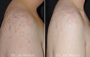 murad acne treatmen picture 2