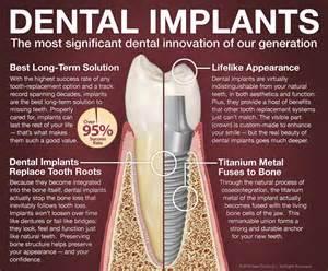false teeth permanent picture 15