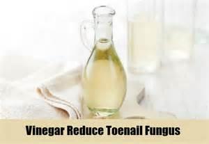spilanthes-usnea, toenail fungus, vinegar picture 3