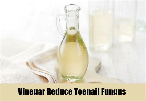 toe nail fungus distilled vinegar picture 5