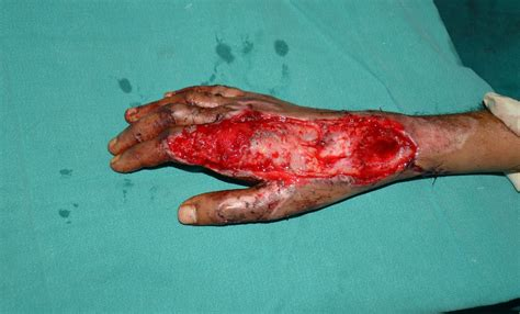friction burn and skin grafting picture 6
