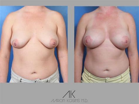 virginia beach breast augmentation picture 2
