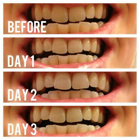 teeth natural whiten whitens whitener whitening picture 5