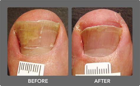 toe nail fungus vics picture 3