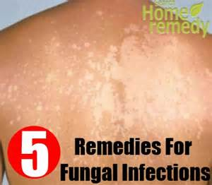 treatment for brown spots from yeast infection picture 11