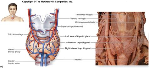 cause increased blood flow to thyroid picture 13
