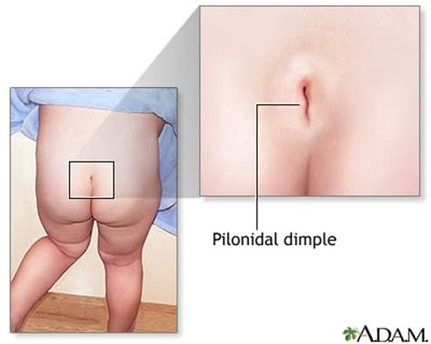 natural breast cysts treatment picture 11
