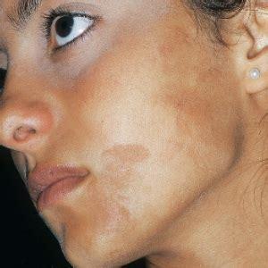 cortisol acne picture 3