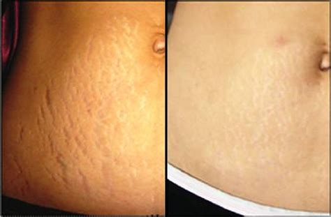 tca on stretch marks before and after picture 3