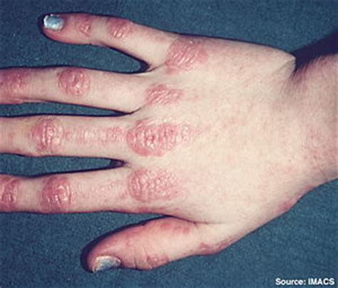 graves disease and taking gordonii picture 2