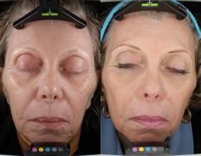lazer acne picture 13