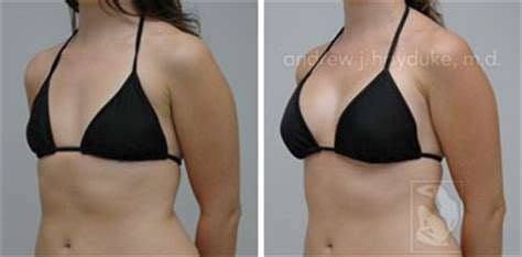 +without surgery breast enhancement before and after pictures picture 10