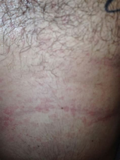 aids skin rash picture 2