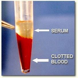 chromium and arsenic picture 11