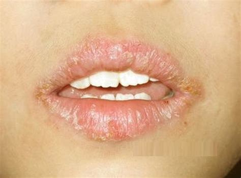 chapped lips symptom of picture 7