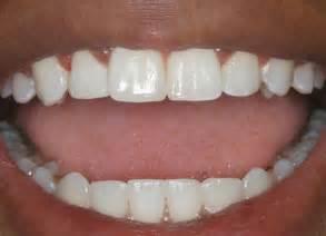 teeth human picture 13