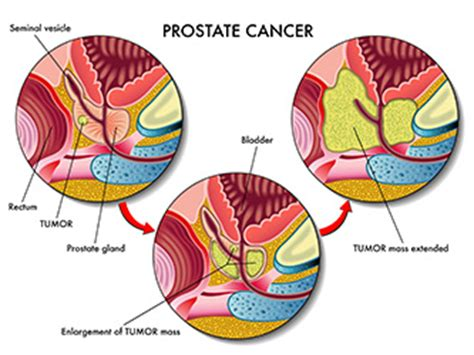 can you ejaculate if prostate rubbed picture 10
