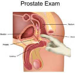 prostate milking st louis picture 3