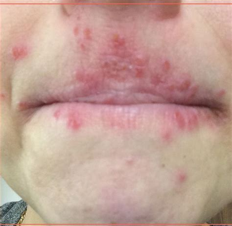 acne or a rash picture 10