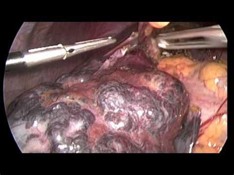 liver hemangioma pain picture 6