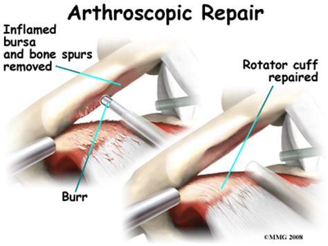 ac joint surgery picture 5
