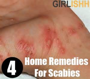 free home remadiescure scapies on skin picture 9