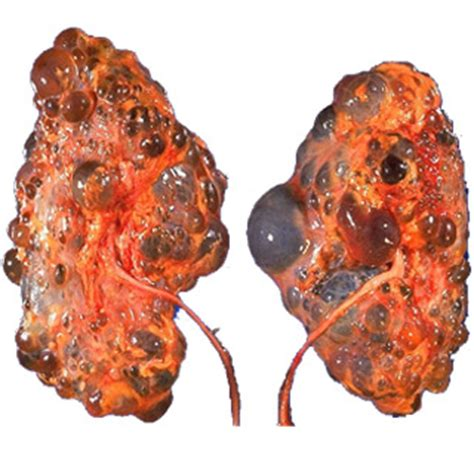 cysts on your liver picture 7