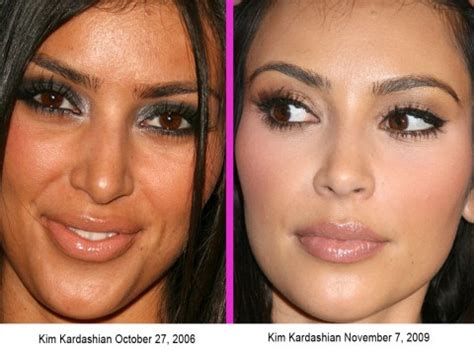 celebrity dermatologist with skin whitening pills picture 7