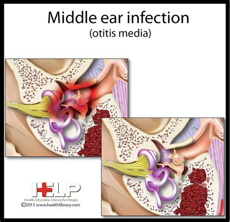 bacterial infections of the inner ear picture 6