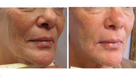 oi acne picture 5