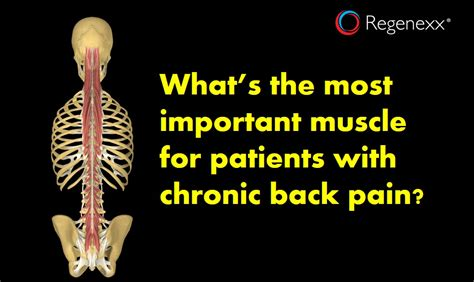 muscle back pain picture 3
