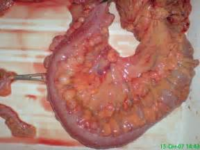 removal of diverticula on colon picture 3