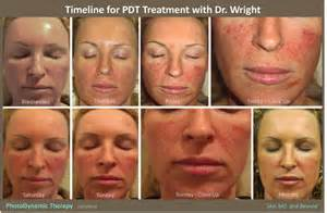 acne light therapy picture 5