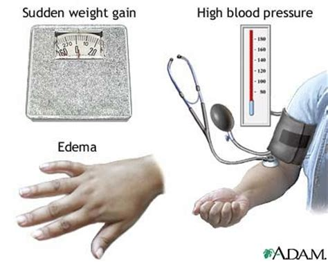 After cesarean blood pressure picture 5