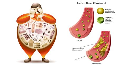 Cholesterol and the liver picture 2