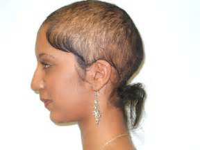 black women loosing hair picture 7