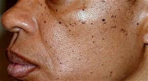 co2 laser removal of moles / skin tags picture 7