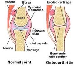 degenerative joint arthritis picture 7