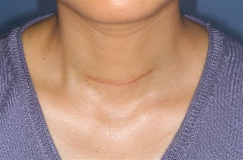 sore throat after thyroidectomy picture 2