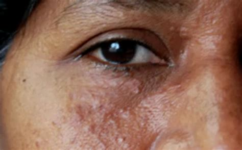 natural remedy for syringoma around the eyes picture 2